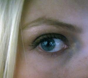 Non-zapped eye
