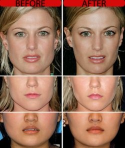 So I tried botox to help my TMJ… – Lipgloss is my Life