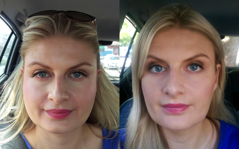 how long does botox last